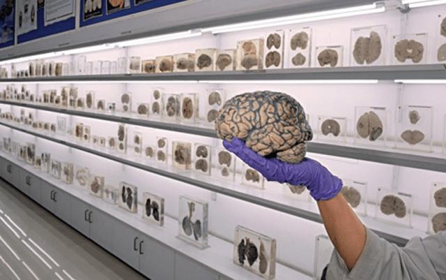 NIMHANS Brain Museum